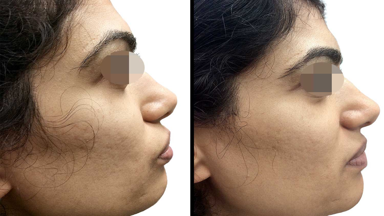 Microneedling with PRP for Acne Scarring with Dr. Rachel Pritzker