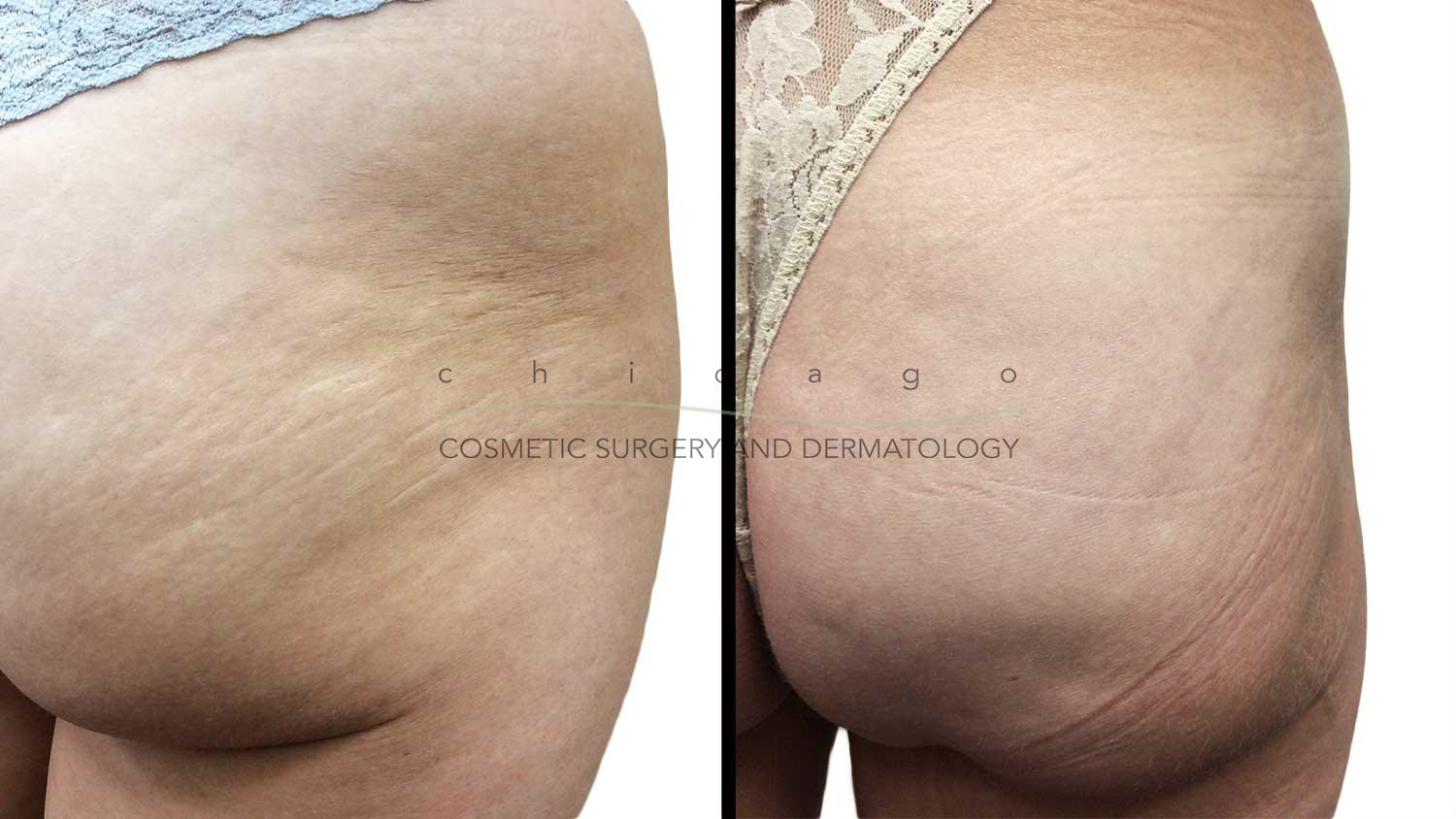 Microneedling with PRP for Stretch Marks by Brittany Rank, PA-C