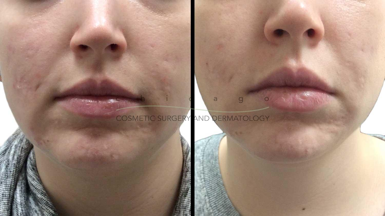 Microneedling with PRP for Acne Scarring by Whitney Hersh, PA-C