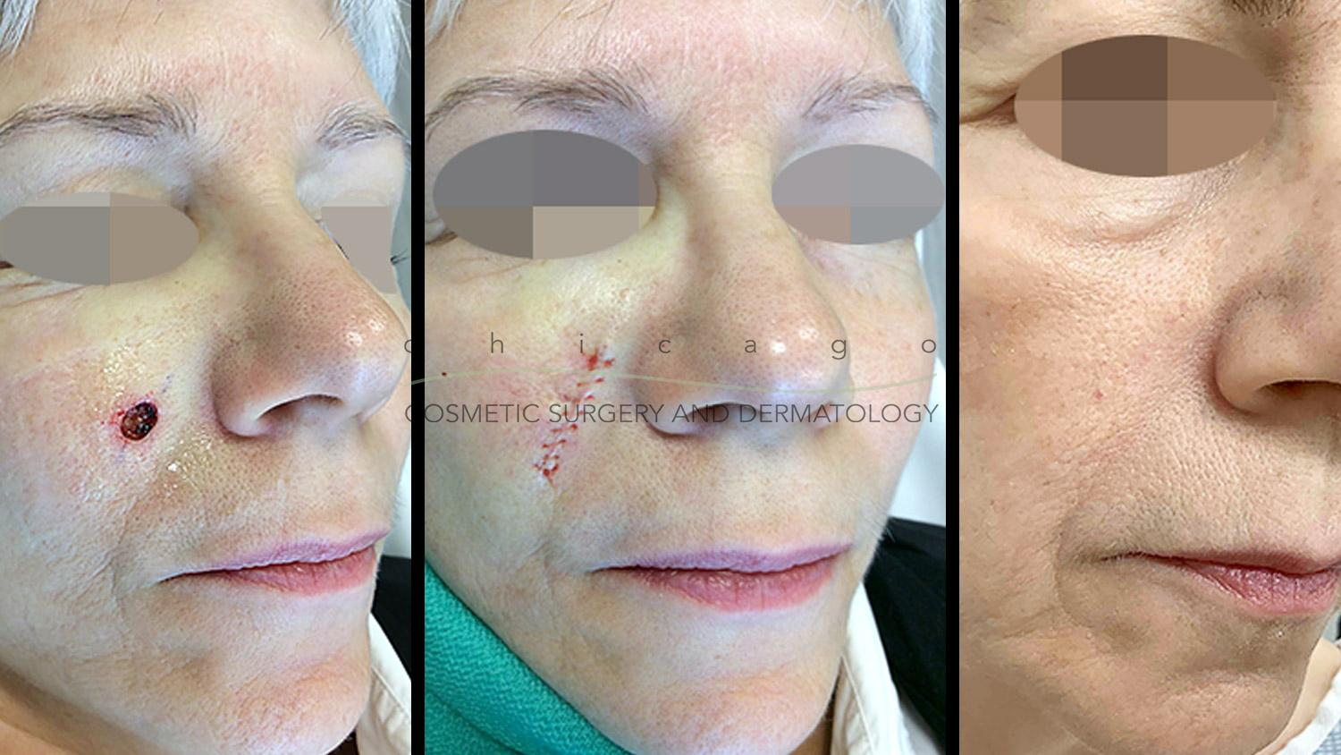 Mohs surgery to remove skin cancer