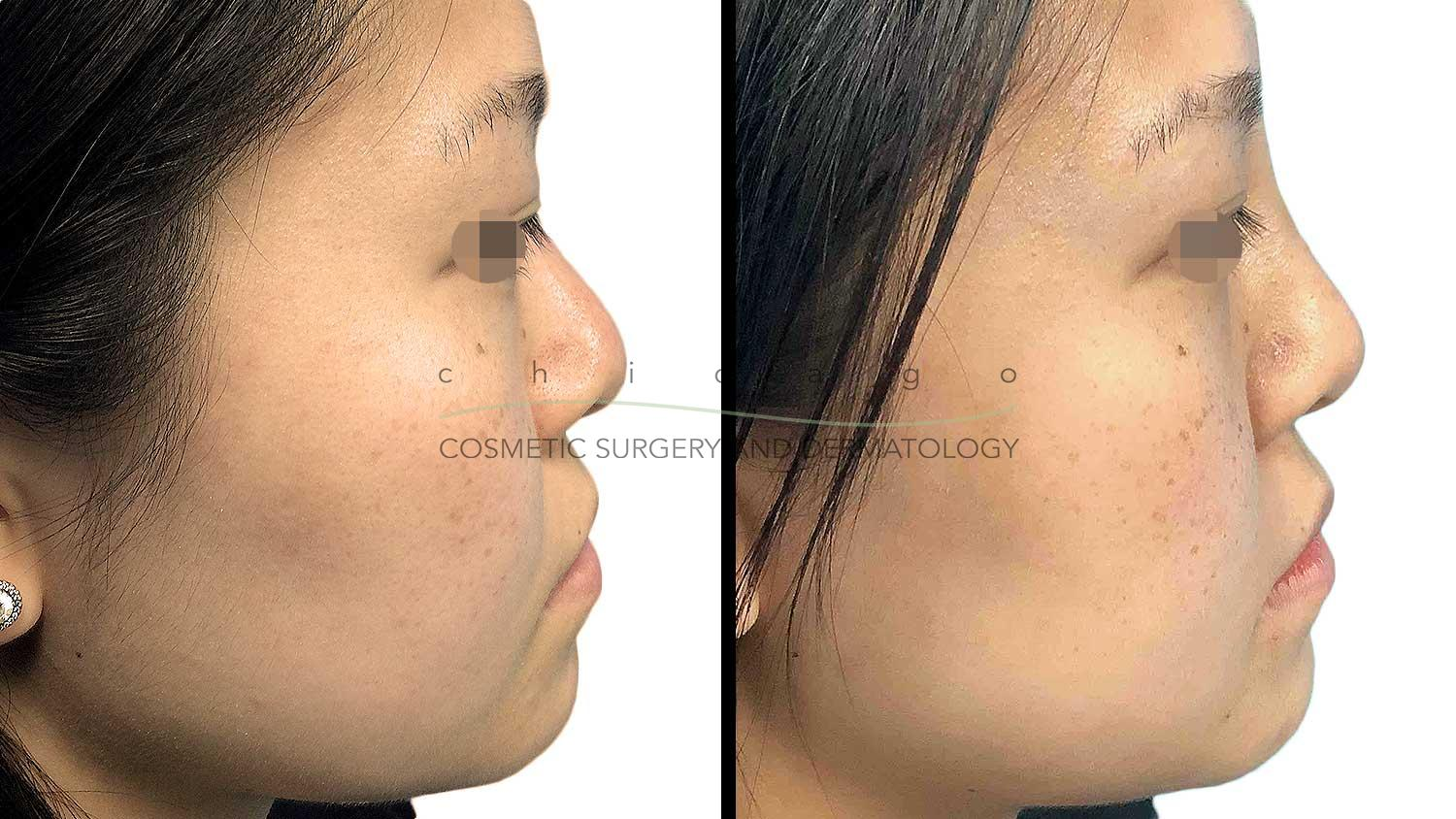 Non-Surgical Nose Job results