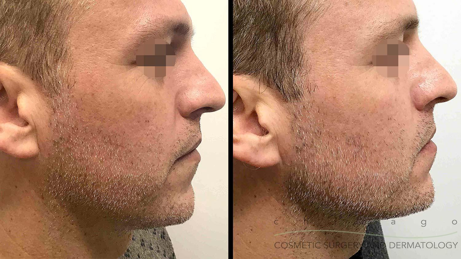 radiesse jawline sculpting before and after