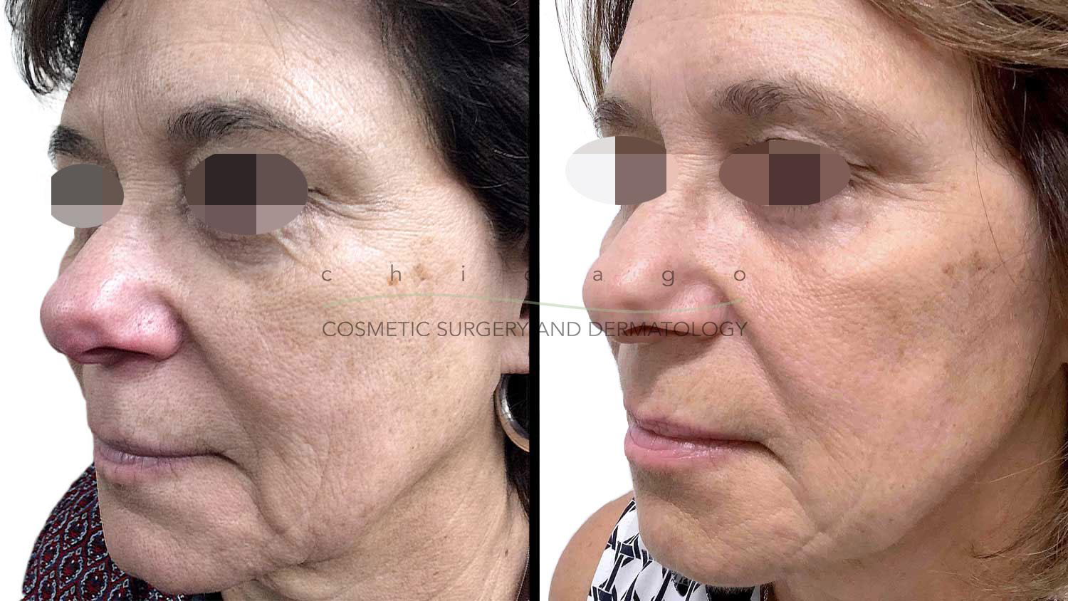 Skin rejuvenation with Restylane and Radiesse by Dr. Fine