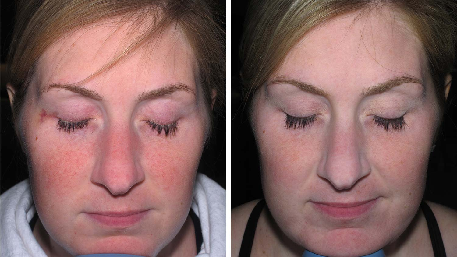 Rosacea Chicago Cosmetic Surgery And Dermatology