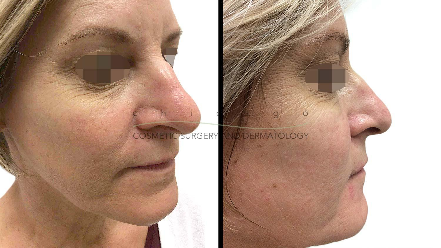 Rosacea ExcelV before and after