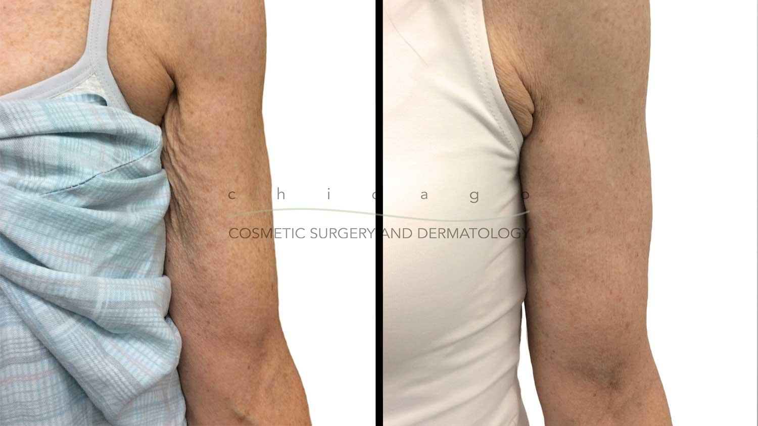Sculptra for arm crepiness by Dr. Ibrahim
