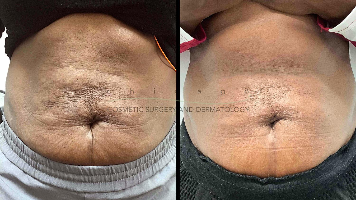 Sculptra for before and after for stomach