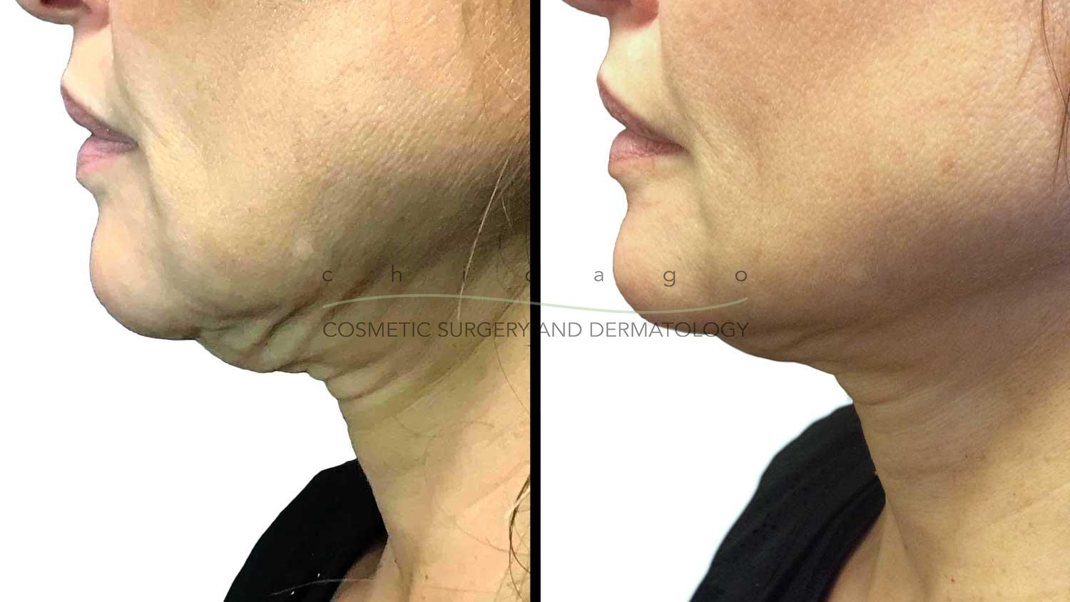 Thermage FLX for neck skin tightening in Chicago