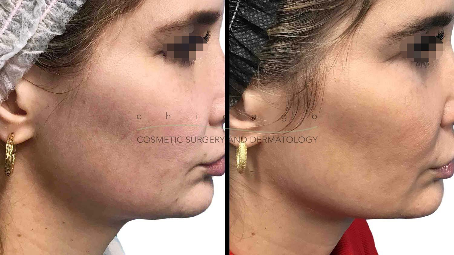 Thermage FLX skin tightening for jawline definition Chicago