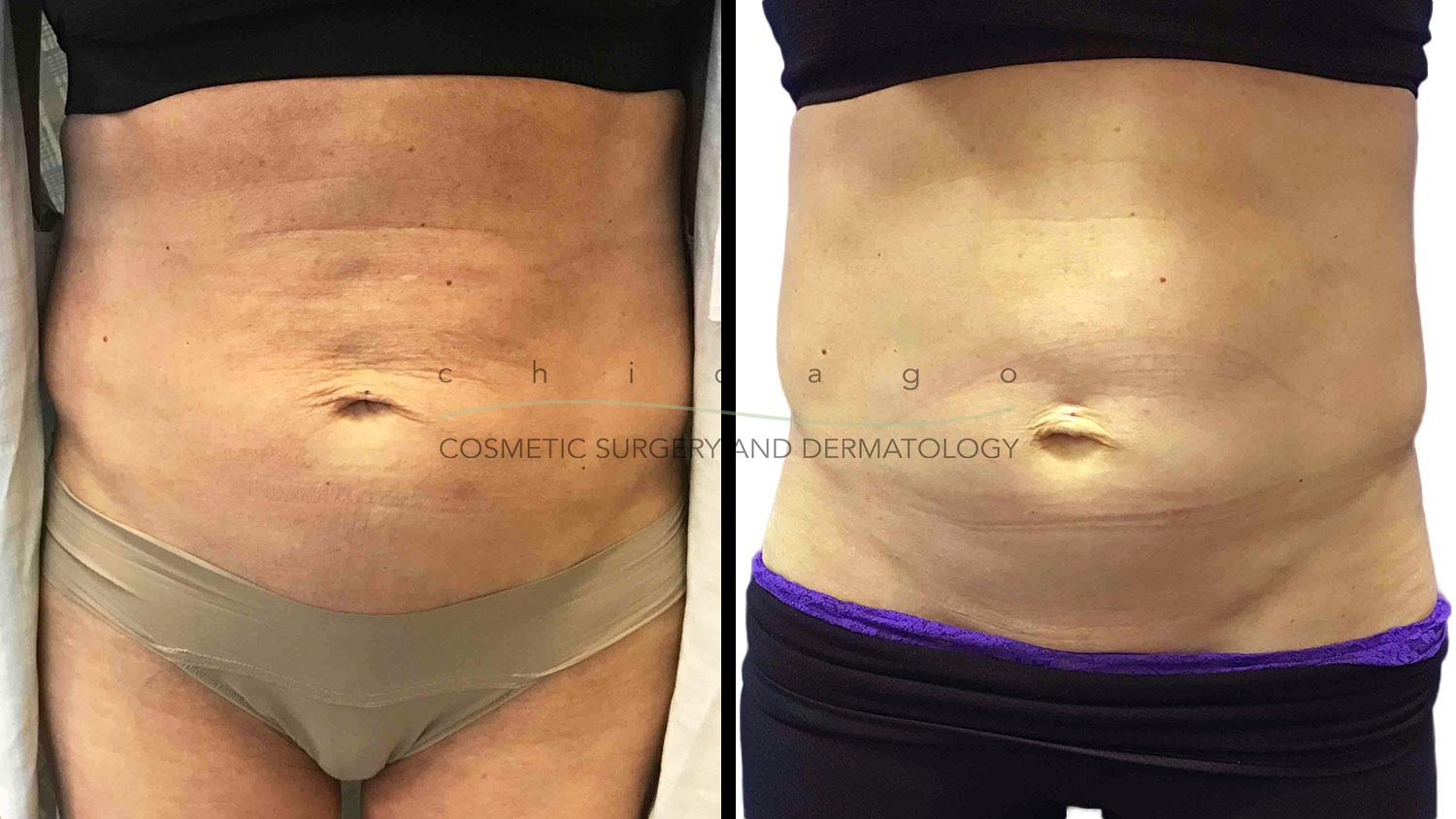 Thermage FLX before and after chicago skin tightening