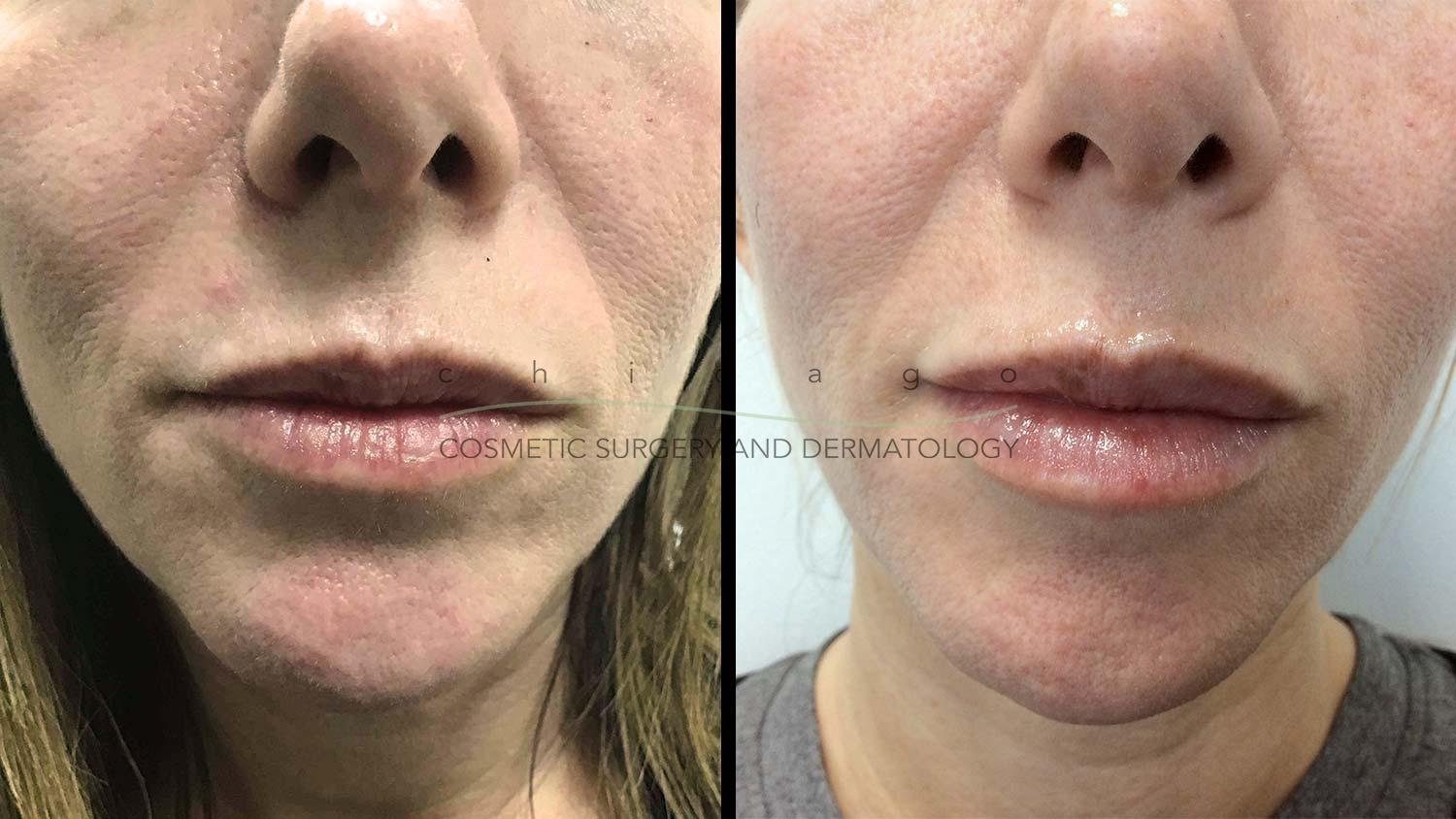 Juvederm Vollure lip filler before and after