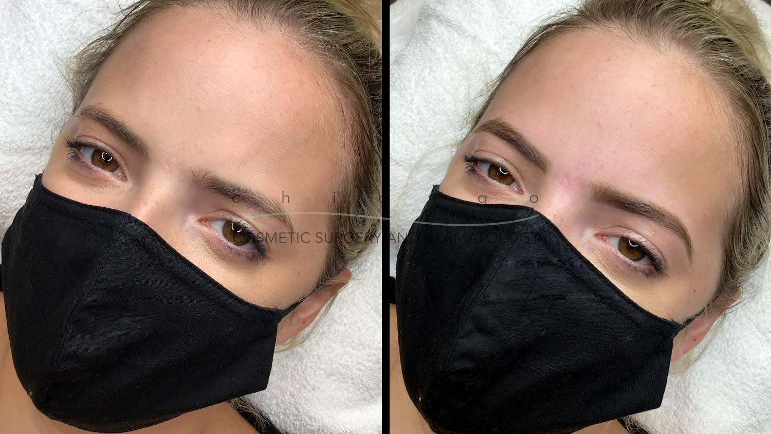 eyebrow wax before and after