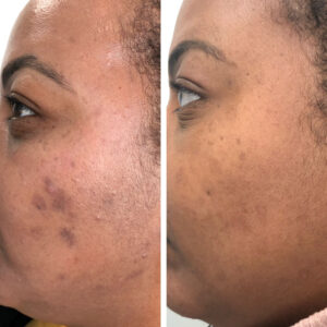 restart chemical peel before and after