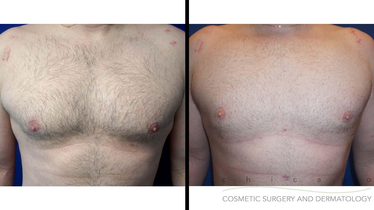 Male Breast Reduction before and after