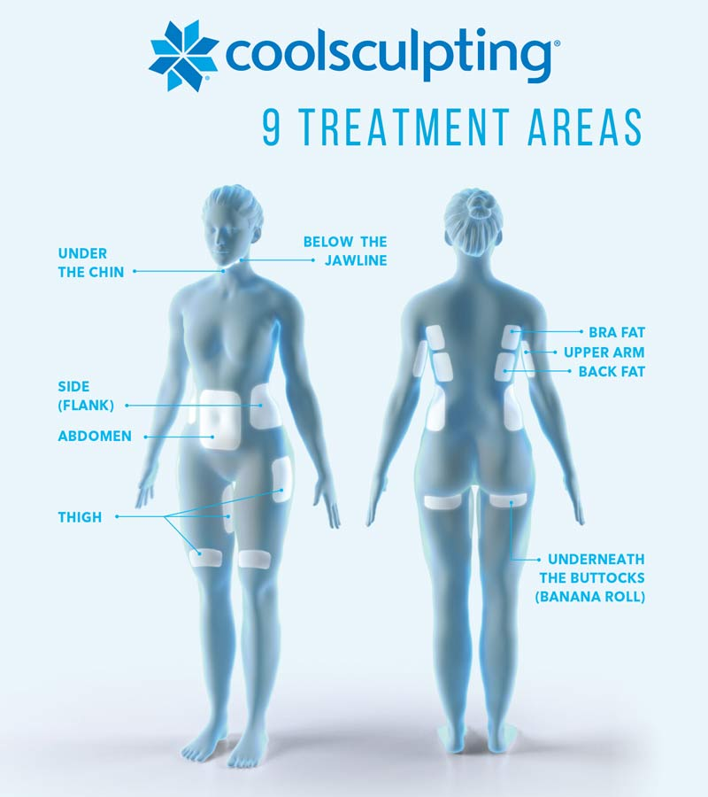 Chicago Dermatology CoolSculpting treatment areas