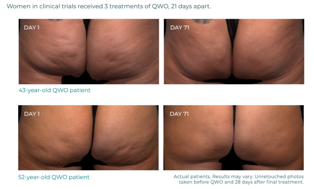 Qwo cellulite before and after