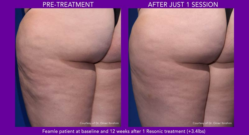 Chicago Dermatology Resonic before and after