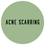 acne-scarring