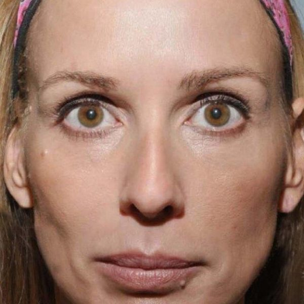 sculptra-before-lower-cheeks